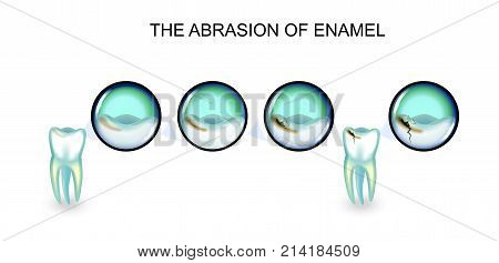vector illustration of abrasion of enamel. the affected tooth.