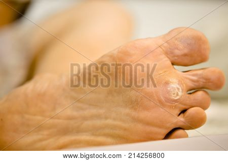 treatment wart under foot by salicylic acid. poster