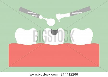 Tooth Amalgam Filling With Dental Tools