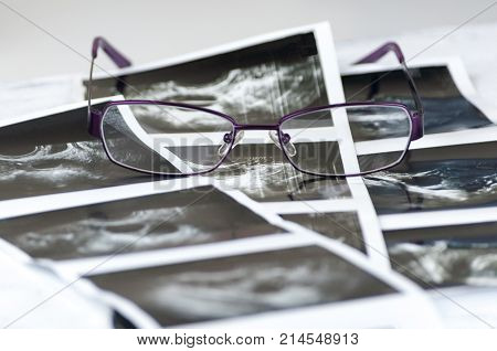 Photo shots of ultra sound study of foliculometry in the protocol of the eco program in the process of hormonal stimulation. Ivf