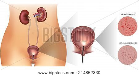 Inflammation Of The Urinary Bladder And Healthy Lining