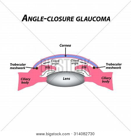 Closed Angle Glaucoma. A Common Type Of Glaucoma. The Anatomical Structure Of The Eye. Infographics.