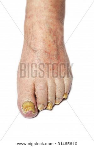 Fungus Infection on Nails of Man's Foot poster