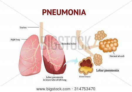 Pneumonia, Lobar Pneumonia, Isolated Vector Illustration On White Background.