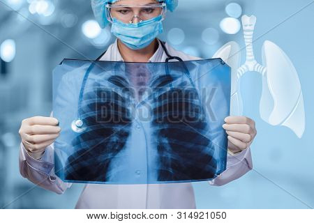 The Doctor Examines The Patients Lungs On Blurred Background. Doctor Looking At An X-ray Of The Lung