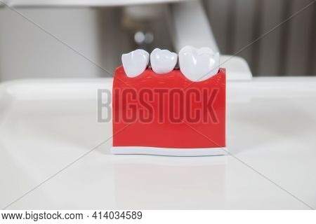 Plastic Dental Crowns, Imitation Of A Dental Prosthesis Of A Dental Bridge For Three Teeth With A Me