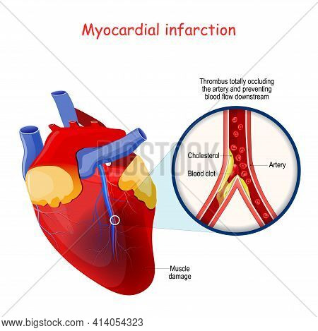 Myocardial Infarction. Heart Attack. Thrombus Totally Occluding The Artery And Preventing Blood Flow