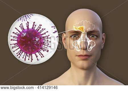 Sinusitis, Inflammation Of Paranasal Cavities. 3d Illustration Showing Purulent Inflammation Of Righ