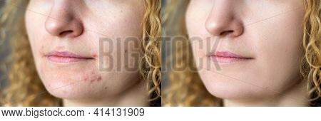 Comparison Portrait Of Young Beautiful Blond Woman Before And After Skin Treatment. Skin Care Concep