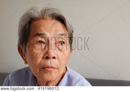 Face Focus Of Elderly Asian Woman With Grey Hair And Freckles And Wrinkled Skin And Eye Is Cataract
