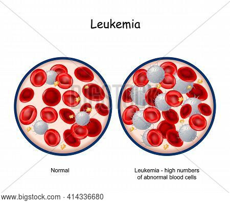 Leukemia. Comparison And Difference Between Blood Of Healthy Person And  Blood Cancer. Close-up Of B
