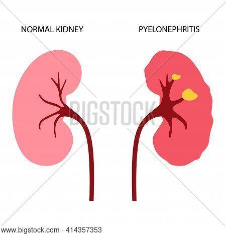 Pyelonephritis And Inflammation In The Human Kidney. Anatomical Medical Poster For Clinic. Pain, And