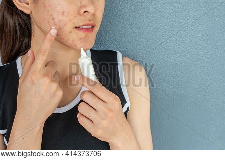 Portrait Of Woman With Acne Inflammation (papule And Pustule) On Her Face And She Trying To Applying