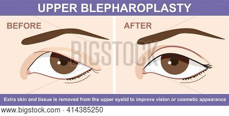 Blepharoplasty Of Eyelid , Before And After. Vector Illustration With Double Eyelid Surgery. Infogra