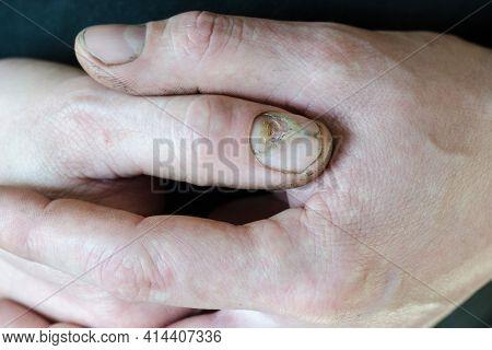 Onycholysis. Regeneration Of The Nail Plate After Mechanical Damage Or Parochinia. Working Male Hand