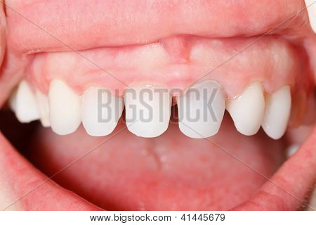 Zircon Teeth