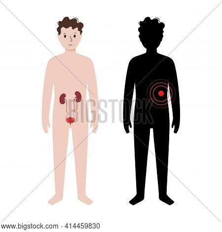 Pain, Inflammation In Kidney. Mellitus Diabetes, Dialysis Concept. Kid Anatomy Poster. Ache In Child