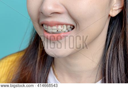 Smiling Asian Woman Wearing Orthodontic Retainer On Blue Screen Background. Dental Care And Healthy