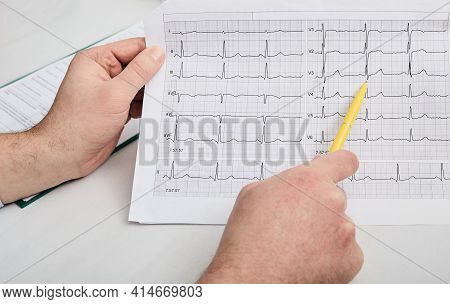 Cardiogram Test, Close-up Of Ecg Report. Doctor Analyzes Cardiogram Results Of A Patients Heart For