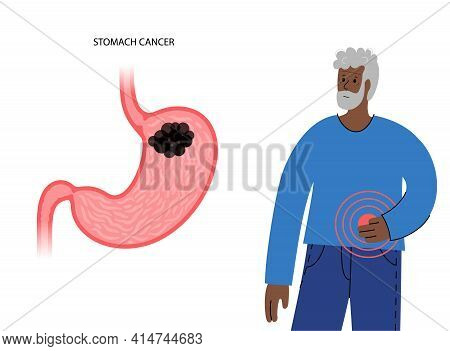Cancer, Pain And Inflammation In The Stomach. Oncology Disease In Digestive System Concept. Benign O