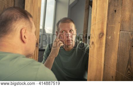 Mature Middle-aged Man Looking In Mirror Reflection And Watching Wrinkles Near Eyes