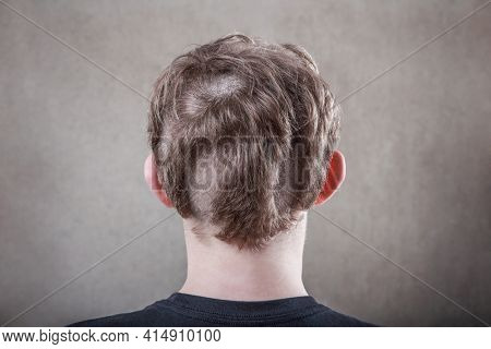Teen with an odd bad haircut