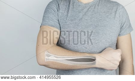 Conceptual Photo. X-ray Of A Man Forearm. An Image Of The Ulna And Radius Appeared On The Skin Of Th
