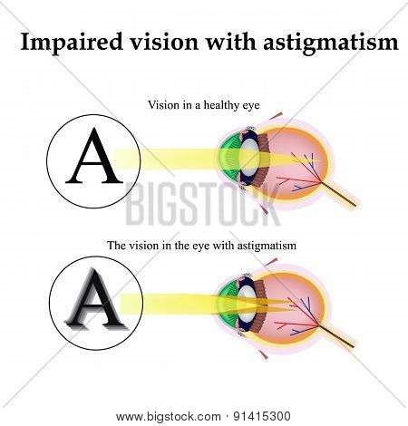 Astigmatism. As the eye can see with astigmatism. Impaired vision
