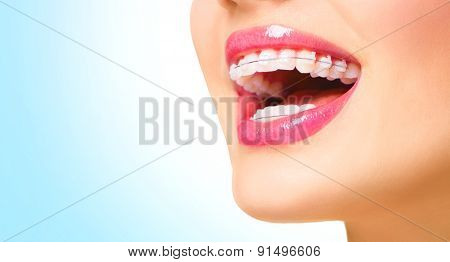Braces. Beautiful Woman healthy smile close up. Closeup Ceramic Braces on Teeth. Beautiful Female Smile with Braces. Orthodontic Treatment. Dental care Concept. Beautiful Lips and Teeth