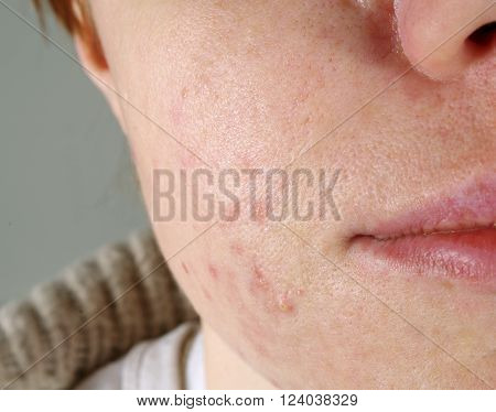 skin close up  with the acne problems