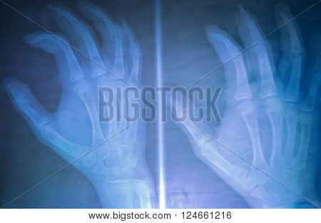 View Of X-ray Film Show Normal Human's Hand.