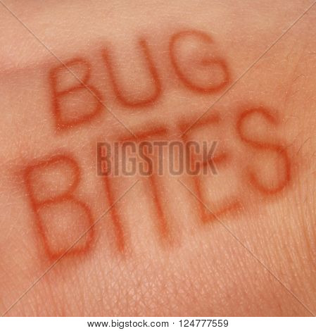 Bug bites medical concept and health care symbol for insect bite infection or skin irritation as human epidermis as text shaped in sores as for lym disease or dengue fever or zika virus and malaria.