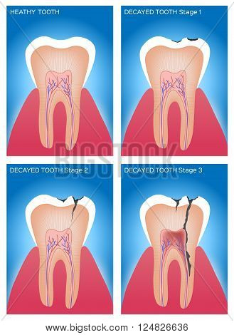 Preview Save to a lightbox  Find Similar Images  Share Stock Vector Illustration: tooth and gum anatomy and damage