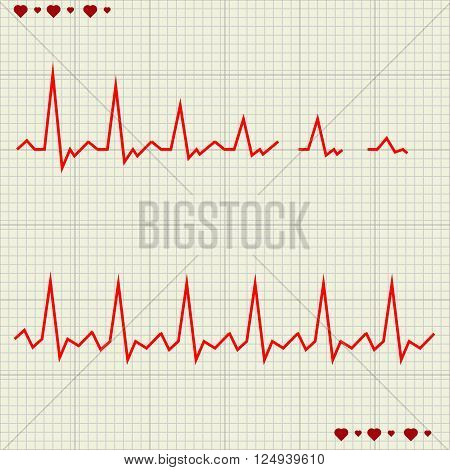A Vector illustration set Heart beats cardiogram