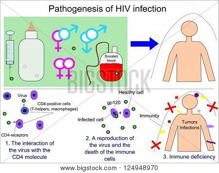 Pathogenesis of the human immunodeficiency virus (HIV) infection