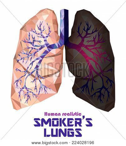 Low poly realistic human lungs and bronchus with cancer inflammation disease. Smoker's lungs. Vector.