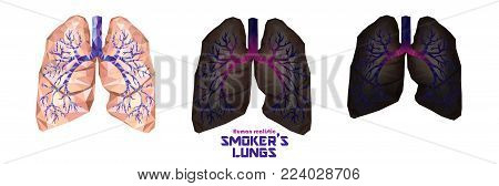 Smoker's Lungs Set In Low Poly. Healthy Lungs, Sick Lungs, Cancer Lungs. Toxic Influence Of Tobacco.