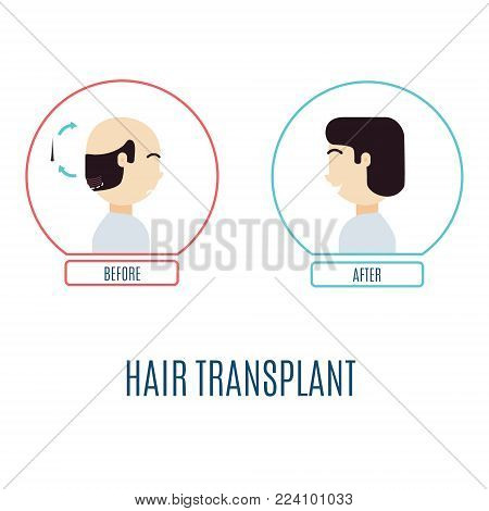 Hair transplantation infographics. Patient with alopecia before and after the procedure. Hair loss medical treatment. Faceless man, no identity concept. Vector illustration for transplantation clinics
