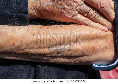 Holocaust Survivor Heinz Kounio Shows His Tattooed Serial Number On His