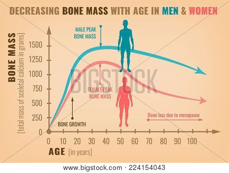 Decreasing bone mass with age in men and women. Detailed infographic in beige, pink and blue colors. Vector illustration. Healthcare and medicine concept.