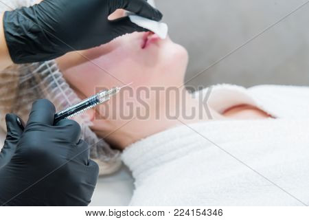 Contour plastic: Dermatologist doctor inject filler. Close up female hands of cosmetologist making injection in lips. Aesthetic cosmetology. Selective focus poster