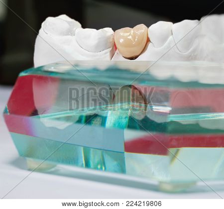 Gypsum dental model with ceramic tooth and glass prism in fron of it.