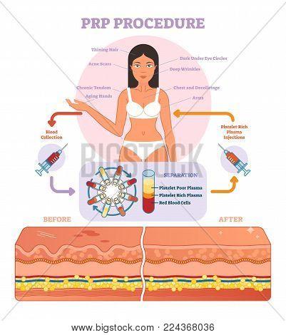 PRP Procedure vector illustration graphic diagram, cosmetology procedure scheme. Women beauty and skincare.