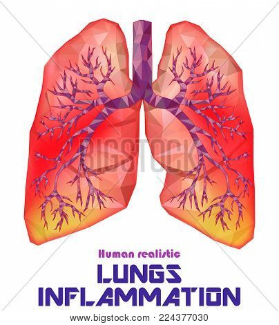 Sick human realistic lungs and trachea in low poly. Pleurisy, an inflammation around the lungs. Infection, tuberculosis, cancer, pulmonary embolism. Vector.