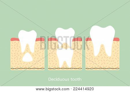 permanent tooth located below primary tooth, anatomy structure including the bone and gum - dental cartoon vector flat style cute character for design