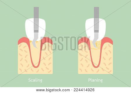 teeth scaling - dental plaque removal, anatomy structure including the bone and gum - tooth cartoon vector flat style cute character for design