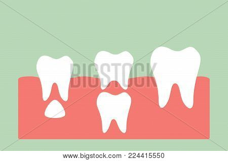 permanent tooth located below primary tooth - dental cartoon vector flat style cute character for design