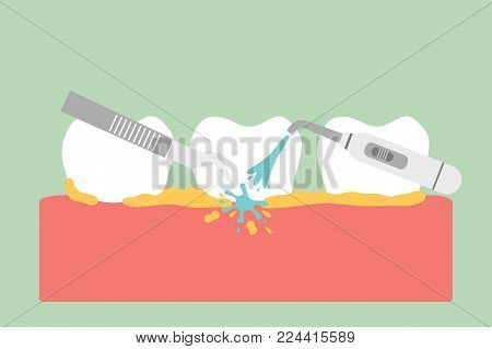 teeth scaling, dental plaque removal for cleaning - tooth cartoon vector flat style cute character for design