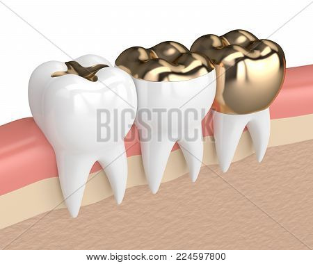 3d render of teeth with inlay, onlay and crown gold filling in gums