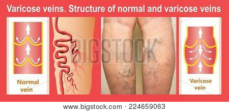 Varicose veins on a female senior leg. Collage about structure of normal and varicose veins